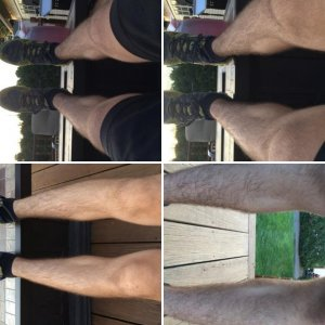 Is this calf atrophy?