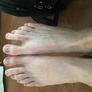 Foot atrophy